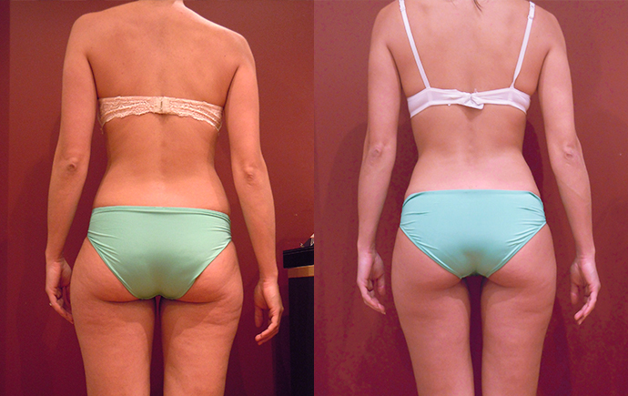 Real People Real Results Hypoxi Usa