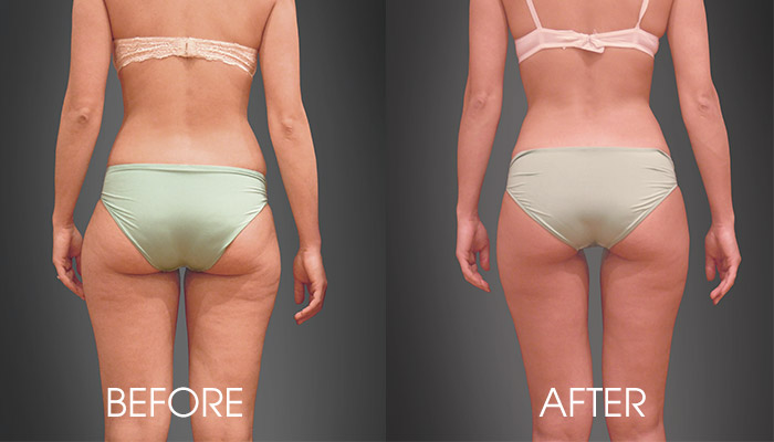 HYPOXI-before-after